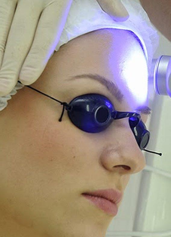 Clareamento de Pele a Laser (1 sessão)