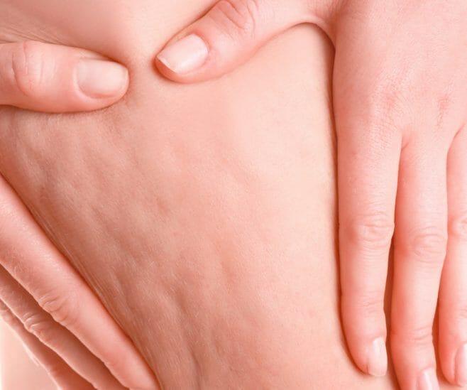 Celulites: A pior inimiga das mulheres
