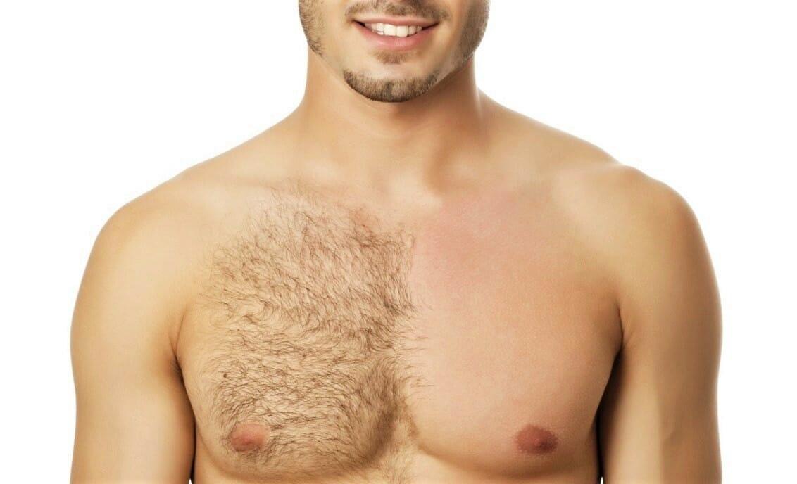 Com ou sem Depilação? Ter ou não ter pelos?