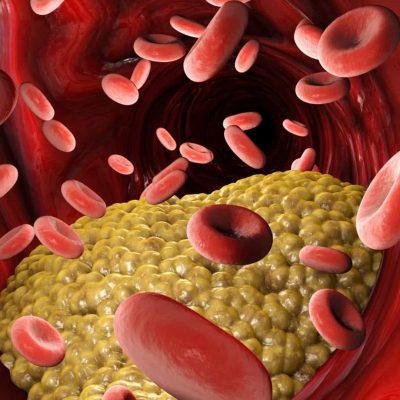 O que você deve saber sobre colesterol