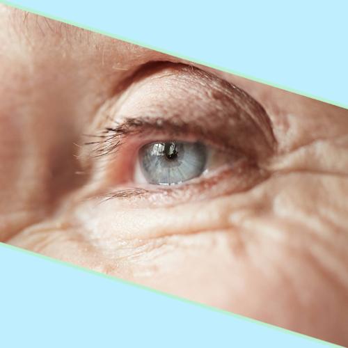 Eletrocautério Facial (Jato de Plasma) (1 sessão)