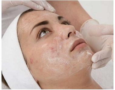 Clareamento de Pele Facial com Triplo Peeling (08 sessões)