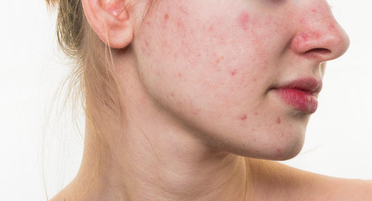 Bio-Acne Solution com Tec. Probiótica 3R'S (04 sessões)