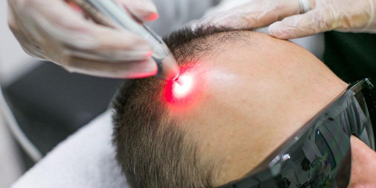 Terapia Capilar Antiqueda Indumaxx Hair e Laser (12 sessões)
