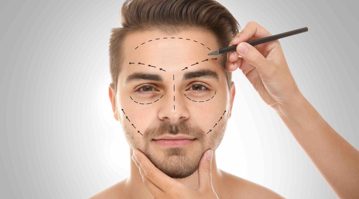 Harmonização Facial Masculina